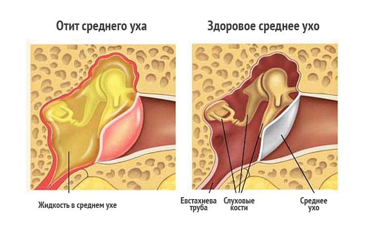 Лечение народными средствами периартрита